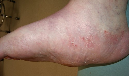 Charcot Foot – Diabetic Foot Pain