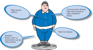 Child Obesity and Diabetes