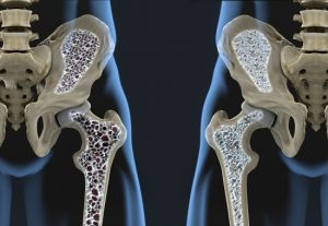 Diabetes Increases Risk of Osteoporosis
