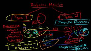 Diabetes Mellitus Pathophysiology