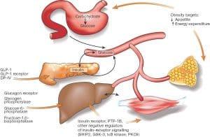 Diabetes Type 1 vs. Type 2
