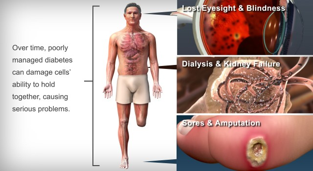 Diabetes has a Negative Effect on Your Body