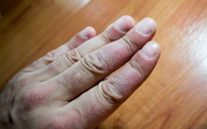 Diabetes is linked to Psoriasis