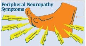 Sensory Nerve Damage Symptoms