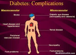 Diabetes Macrovascular Complications